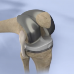 Orthopaedic Specialists of Connecticut provides knee replacement services.