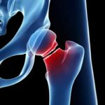 Learn more about fractures and how Orthopaedic Specialists of Connecticut can help.