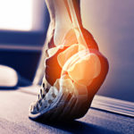 Orthopaedic Specialists of Connecticut provides treatment for conditions of the foot and ankle.