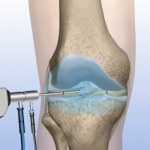 Orthopaedic Specialists of Connecticut provides knee arthoscopy services.