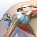 Orthopaedic Specialists of Connecticut provides shoulder arthoscopy services.